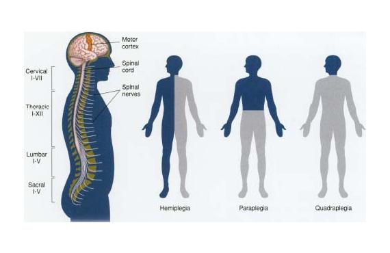 a report on paraplegia